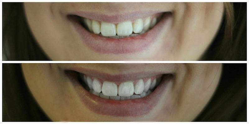 Casablanca Smile Bleaching ohne Schmerzen günstig und sanft7